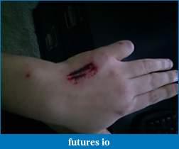 Dislocated, broken, swollen?-c360_2011-03-21-12-18-57.jpg