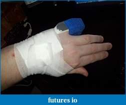Dislocated, broken, swollen?-c360_2011-03-21-17-23-59.jpg