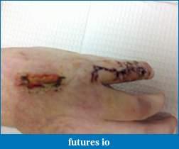Dislocated, broken, swollen?-c360_2011-04-06-14-12-34.jpg