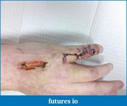 Dislocated, broken, swollen?-c360_2011-04-06-14-12-26.jpg