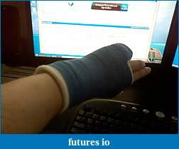 Dislocated, broken, swollen?-c360_2011-04-06-18-16-56.jpg